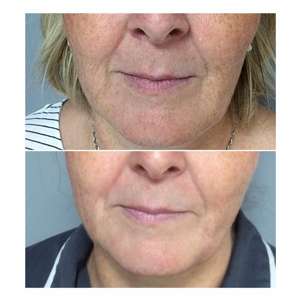 Caci non surgical solutions b l u s h about caci international ccuart Image collections